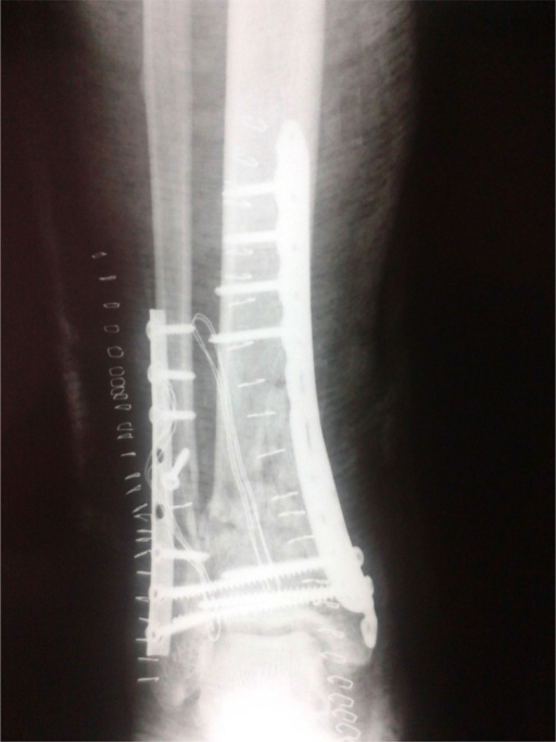 Postoperative anteroposterior lower extremity radiograph showing the internal fixation of the pilon fracture.