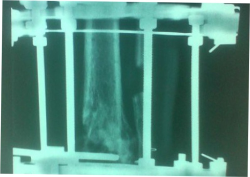 Postoperative anteroposterior lower extremity radiograph at 6 months after the Ilizarov external fixation application.