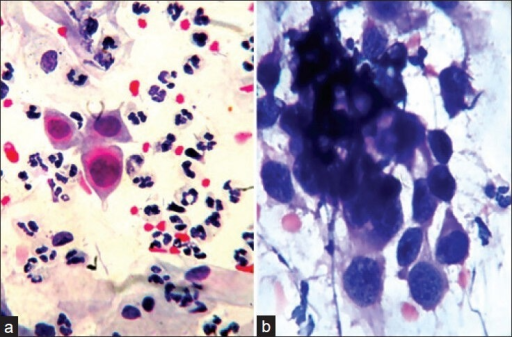 (a) Photomicrograph showing high grade squamous intraepithelial lesion having moderate increase in the nucleocytoplasmic ratio, anisonucleosis and hyperchromatic nuclei with irregular nuclear membrane (Pap, ×400). (b) Photomicrograph showing squamous cell carcinoma having overlapping of the nuclei, severe increase in the nucleocytoplasmic ratio, hyperchromatic nuclei with conspicuous nucleoli (Pap, ×400)