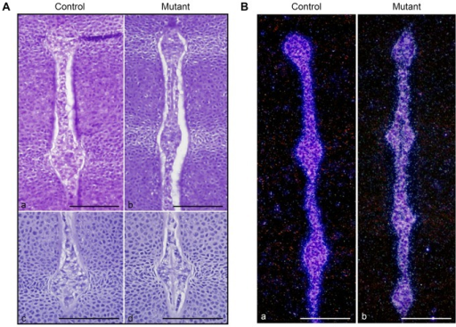 Normal differentiation of the notochord in absence of HIF-1α.A. H&E staining of E13.5 spine in control (Foxa2iCre;HIF-1αf/+) (a) and mutant (Foxa2iCre;HIF-1αf/f) (b) mice. High magnification of E13.5 NP in control (Foxa2iCre;HIF-1αf/+) (c) and mutant (Foxa2iCre;HIF-1αf/f) (d) mice. Bar = 50 µm. B. In situ hybridization for brachyury mRNA in control (HIF-1αf/f) (a) and mutant (Foxa2iCre;HIF-1αf/f) (b) spine at E13.5. Darkfield pictures are shown. Bar = 50 µm.