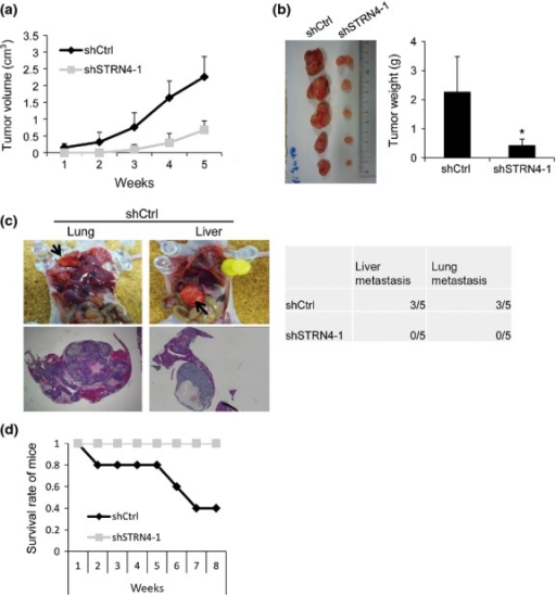 Depletion of STRN4 suppresses tumor proliferation and metastasis in mice. (a) shCtrl and shSTRN4-1 KP4 cells were injected s.c. into the femurs of mice, and the tumor volume was then measured. The graph shows the average volume of five tumors corresponding to each cell line. (b) Five weeks after tumor injection, the mice were killed and the tumor weight was measured. The picture shows the extracted tumors, and the graph indicates the average tumor weight of the five tumors derived from each cell line (*P < 0.05). (c) Cells were injected into the lateral tail vein of mice, and metastasis in the lung and liver was examined. Representative images of lung and liver with tumor metastasis are shown. The images in the lower panel are HE-stained tumor foci in the lung and liver. (d) Survival curve of mice injected i.v. with shCtrl or shSTRN4-1 KP4 cells. The surviving mice were killed 8 weeks after injection.