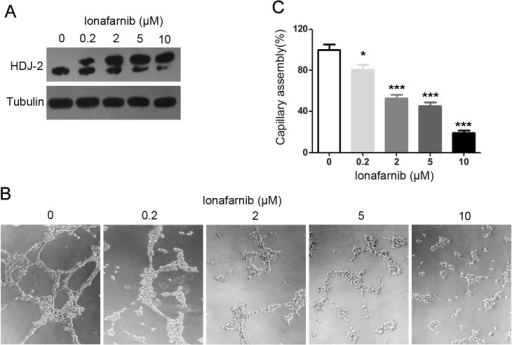 The effect of lonafarnib on vascular endothelial capillary assembly in vitro.(A) HUVECs were treated with DMSO or gradient concentrations (0.2μM -10μM) of lonafarnib for 24 hours, and HDJ-2 farnesylation was analyzed by Western blot. (B) HUVECs were plated onto matrigel and treated with DMSO or different concentrations (0.2μM -10μM) of lonafarnib. Photographs were taken 6 hours later. (C) Experiments were performed as in (B), and the cumulative capillary length was calculated. Results are means ±SEM from three independent experiments; ***P < 0.001 versus Control, *P < 0.05 versus Control.