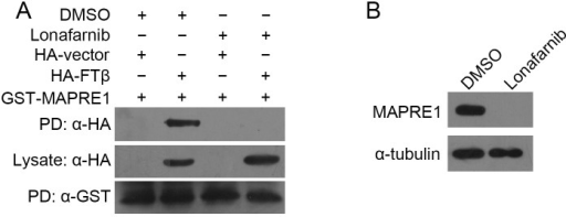 Lonafarnib suppresses MAPRE1 expression and interrupts its interaction with FTβ.(A) After co-transfection of GST-MAPRE1 and HA-FTβ, HUVECs were treated with DMSO or 10 μM lonafarnib for 24 hours. GST pull-down (PD) and Western blot were then performed to examine their interaction. The expressions of the HA-FTβwere monitored and comparable amounts of cell lysates were loaded in the pull-down assay (middle panel). (B) HUVECs were treated with DMSO or 10 μM lonafarnib for 24 hours, and endogenous MAPRE1expession was analyzed by Western blot.