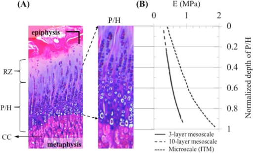 Determination of the elastic moduli of the growth plate utilized in the models.(A) Stained histological slice (haematoxylin and eosin) of a 4-month old bovine growth plate; chondrocytes are dispersed in the reserve zone (RZ) and are stacked in tubes (chondrons) extending from the zone of proliferation (P) through the zones of maturation and hypertrophy (H). The walls of the chondron tubes (interterritorial matrix) become increasingly calcified toward the metaphyseal side. Following chondrocyte death, the walls of tubes or bars of calcified cartilage (CC) matrix form the scaffolding upon which bone is laid down (primary spongiosa); scale bar = 100 μm. (B) Distribution of the elastic modulus of the P/H zone (3-layer mesoscale and 10-layer mesocale models) and interterritorial matrix (ITM) (microscale model).