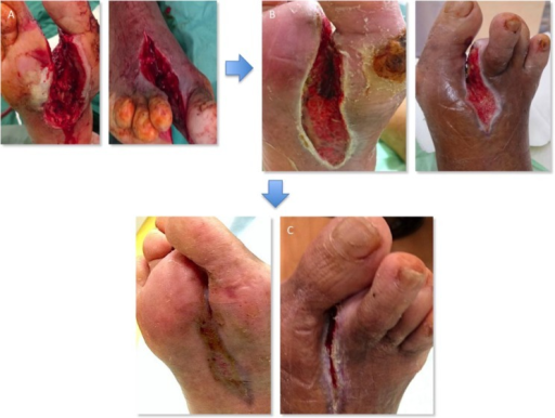 (a) Wound after surgical debridement. (b) Wound after 2 weeks of NPWT. (c) Healed wound at 6 weeks post-surgery.