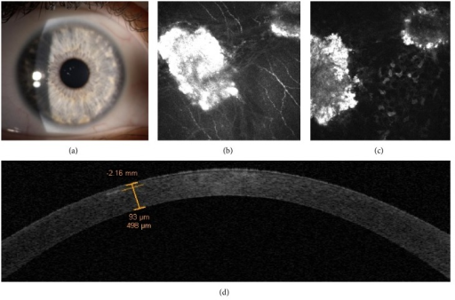 Case 2, the daughter. Slit-lamp examination shows the presence of few and very tiny patchy stromal opacities, without stellate and linear opacities at onset (a). IVCM scans show the presence of granular hyperreflective spots without complex deposits among the subepithelial nerve fibers and circular hyperreflective deposits (amyloid) surrounding an internal hyporeflective core (hyaline) in the anterior stroma (b and c). Time domain OCT corneal scans provided a wide visualization of the cornea revealing the topographic localization and the depth of corneal deposits (d).