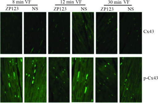 Immunofluorescence and confocal laser scanning microscopy of Cx43 and p-Cx43. High-intensity specific immunoreactive signals of Cx43 and p-Cx43 were clearly identified and regularly distributed in ZP123 groups compared to the control groups. With the duration of VF, Cx43 and p-Cx43 signals decreased and distributed in heterogeneity. Magnification, ×400. p-Cx43, phosphorylated Cx43; ZP123, rotigaptide; VF, ventricular fibrillation; NS, normal saline; Cx, connexin.