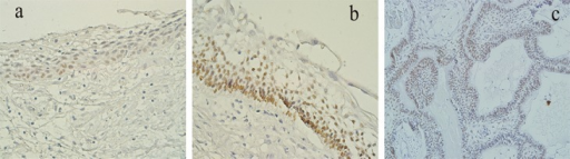 a: P63 expression in dentigerous cyst in only basal layer.  b, c: P63 expression in luminal (b) and mural (c) unicystic ameloblastoma. Intense immunostaining in lower layers (×400 magnification)