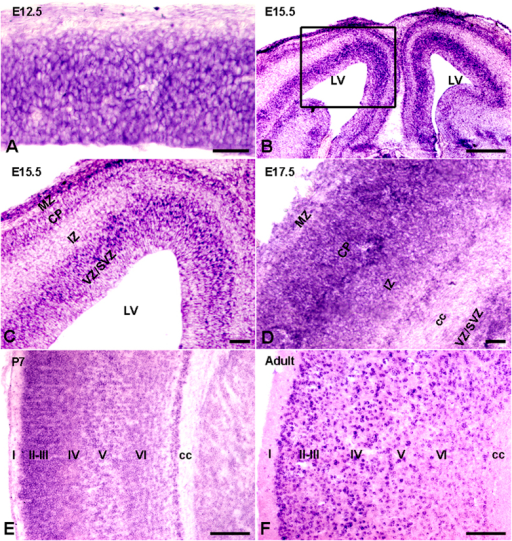 Expression profile of Ulk4 mRNA in mouse cortex.(A) Strong in situ hybridization signals were detected broadly in the whole E12.5 cortex. (B) In E15.5 cortex, Ulk4 mRNA was expressed highly in ventricular zone, subventricular zone and cortical plate. (C) Enlarged view of the boxed region in (B). (D) Ulk4 mRNA was expressed widely in E17.5 cortex, with a preferable location in upper layers. (E,F) Similar to the expression profile of E17.5 cortex, Ulk4 mRNA was expressed extensively in the cortex at postnatal day 7 and 4 month with a predominant location in layers II–IV. cc, corpus callosum; VZ, ventricular zone; SVZ, subventricular zone; IZ; intermediate zone; CP, cortical plate; MZ, marginal zone. I–VI, sublayers of cortex. Bars = 100 μm in (B,E,F) and 20 μm in (A,C,D).