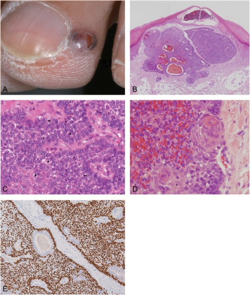 A, Clinical appearance of the red-purple fluid-filled nodule that appeared adjacent to the operative scar tissue resulting from the removal of the previous tumor. B, The tumor consisted of discrete nodules that were well circumscribed and, as was the case with the previous specimen, the tumor contained hemorrhages, although there were fewer tubular structures than in the previous specimen (hematoxylin and eosin ×20). C, Neoplastic cells exhibit nuclear atypicality and an increased number of mitoses compared with the previous specimen (hematoxylin and eosin ×400). D, Distinctive squamous foci were present (hematoxylin and eosin ×400). E, p63 staining showing that tumor cells, with the exception of those lining the tubular structures, were positive for p63 expression (×100).