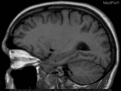 Well defined water signal lesion in the inferior left frontal lobe.  This is most consistent with a dilated Virchow-Robin space.