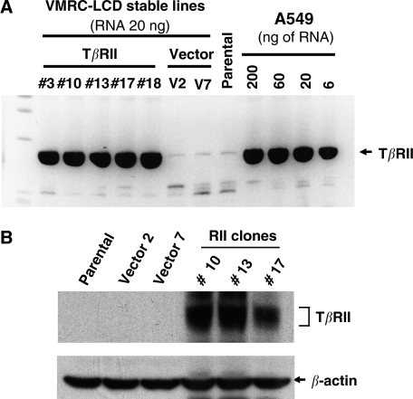 Stable VMRC-LCD cells expressing TβRII. (A) The VMRC-LCD cells were transfected with TβRII-pcDNA3 or empty pcDNA3 vector (Invitrogen) and selected with G418 for 2 weeks to establish the stable clones. In all, 20 ng of total RNA was used for TβRII stable VMRC-LCD clones, vector clones and parental cells. Quantitative real-time RT–PCR was performed to determine the relative mRNA expression level of each TβRII stable clones. Dilutions of RNA isolated from A549 cells was used as standards for comparison. The stable expression of TβRII mRNA in VMRC-LCD clones were compared with the endogenous TβRII expression in A549 cells. (B) Cell lysates from parental, vector clone, and stable TβRII clones were subjected to immunoblotting with anti-TβRII antibody. Expression of TβRII protein in individual clones is shown. Equal amount of protein loading was verified by immunoblotting the membrane with anti-β-actin antibody.