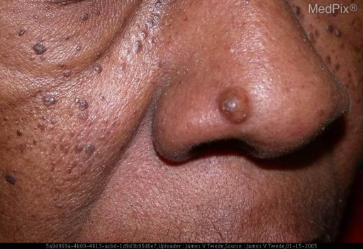 5 mm firm cystic nodule on right nasal ala. No other significant skin findings
