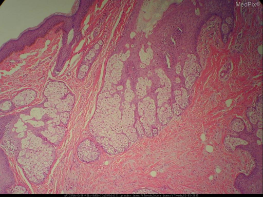 Histopathology: The biopsy shows normal epidermis overlying a proliferation of numerous radiating sebaceous lobules. Small amounts of rudimentary hair structures and apocrine glands are present within the proliferation. The pilosebaceous units are embedded in a mesenchymal stroma composed of fibrous, adipose, vascular and neural tissue. Immunohistochemical stains for S-100 showed staining of numerous stellate, spindle and dendritic cells in the intervening myxoid stroma. Several of these spindle and dendritic cells also stain for factor XIIIA