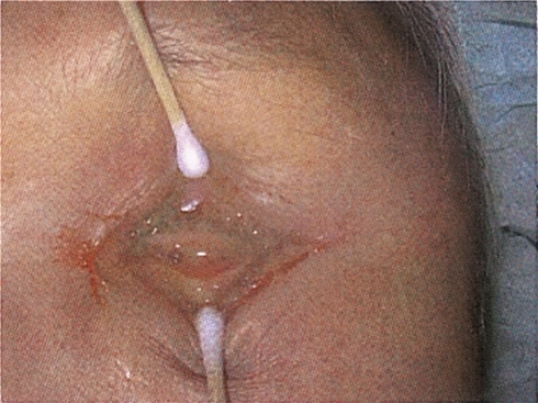 Profuse pus discharge one month after removal of dermofat graft.