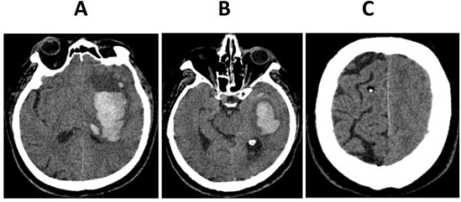 ct scan images after clinical signs of brain herniation developed a basal ganglia