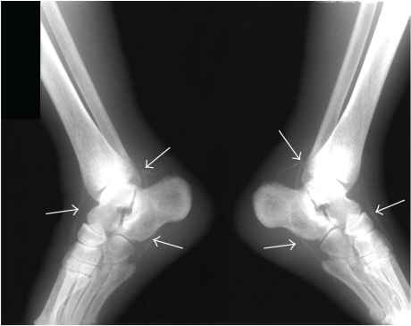 Ankle radiographies show anterior and posterior tibial arterial wall calcifications (arrows).