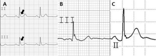 The definition of early repolarization patterns. (A) Early repolarization: defined as a QRS-ST junction elevation of at least 1 mm (0.1 mV) above the baseline in at least two continuous inferior or lateral leads that manifests as QRS slurring or notching (thick arrow). (B) A horizontal ST segment was defined as a J-point elevation of <0.1 mV within 100 ms after the J point (46-yr-old man in SCA group). (C) An ascending ST segment was defined as a J-point elevation of >0.1 mV within 100 ms after the J point (44-yr-old man in control group).