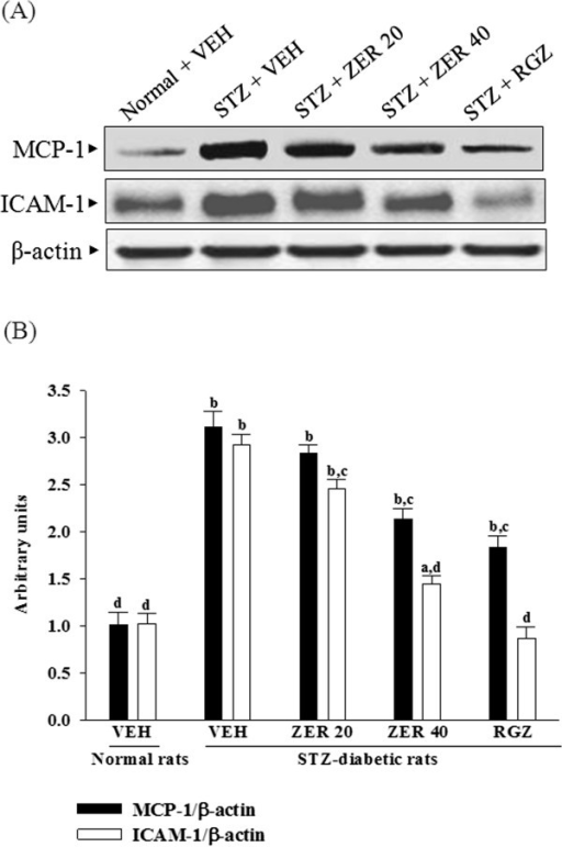 Effects of treatments on renal chemokines expression. (A) Representative immunoblots of protein expression of MCP-1 and ICAM-1 in renal tissues of STZ-diabetic rats treated for eight weeks with zerumbone (ZER) or rosiglitazone (RGZ). STZ-diabetic rats were dosed by oral gavage once daily for eight weeks with 20 mg/kg ZER (ZER 20), 40 mg/kg ZER (ZER 40) or 5 mg/kg RGZ (RGZ). Normal (normal + VEH) or STZ-diabetic rats receiving vehicle treatment (STZ + VEH) were administered the same volume of vehicle (VEH) used to dissolve test medications. (B) Ratio of MCP-1/β-actin or ICAM-1/β-actin is expressed as the mean with SD (n = 4 per group) in each column. ap < 0.01 and bp < 0.01 compared to vehicle-treated normal rats. cp < 0.05 and dp < 0.01 compared to vehicle-treated STZ-diabetic rats, respectively.