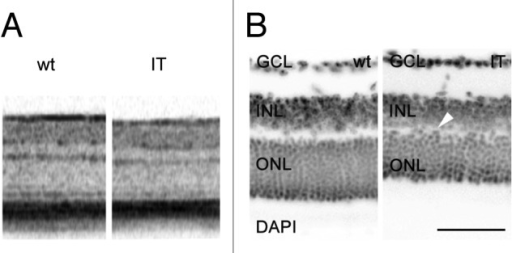 Figure 2. Morphological assessment of wt and IT mouse retinas. (A) In vivo OCT analysis of wt and IT mouse retinas, indicating (i) a reduction of the photoreceptor-containing outer nuclear layer (ONL), and (ii) a less expressed patterning of the inner/outer segment (IS/OS) border. (B) Retinal slices of adult wt (left) and IT (right) mice were stained with DAPI to show the nuclei. Light microscopic pictures from wt and IT were aligned at the GCL. Exemplar sections were taken from slices showing the same eccentricity. The reduction in the thickness of the ONL and INL in IT mice is evident (in [µm] for wt and IT respectively: ONL: 56 vs. 35; INL: 37 vs. 22). The arrow indicates the obvious misorganisation of the OPL. ONL, outer nuclear layer, INL, inner nuclear layer, GCL, ganglion cell layer. Scale bar 50 µm.
