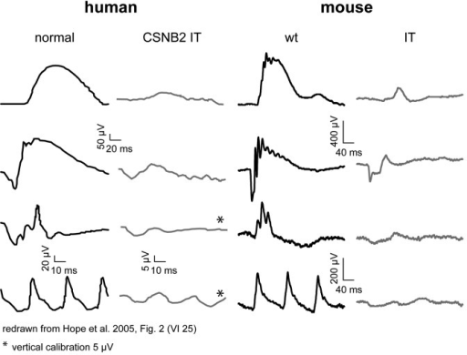Figure 7. Functional comparison of human and murine subjects affected by the I745T mutation. Ganzfeld ERG recordings from a normal subject (left) and a patient with incomplete CSNB carrying the CACNA1F mutation I745T (center left) were redrawn form the original records (ref. 3). They correlate rather well with the murine data of wt (C57BL/6N; center right) and IT mice (right). The set of records follows the human ERG diagnostic standard as issued by the International Society for Clinical Electrophysiology of Vision (ISCEV; www.iscev.org/standards). From top to bottom, traces in each column represent the scotopic single flash response, the scotopic mixed response, the photopic single flash response, and the photopic 30 Hz flicker ERG. The murine records were obtained with identical paradigms.