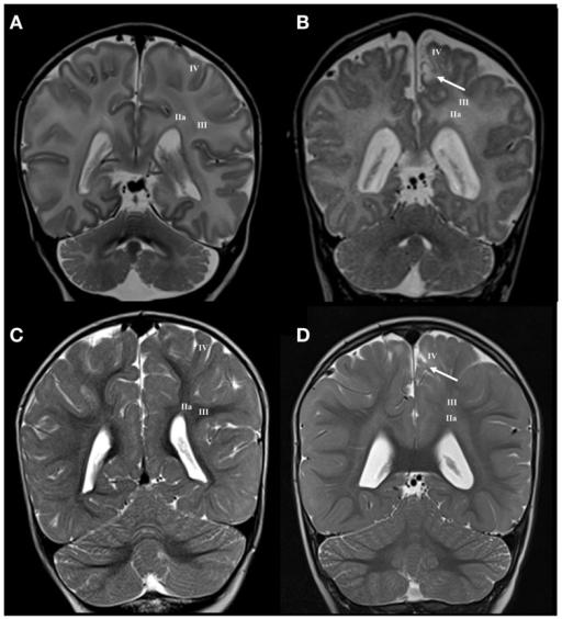 Longitudinal MRI follow-up of perinatal gyral white mat | Open-i