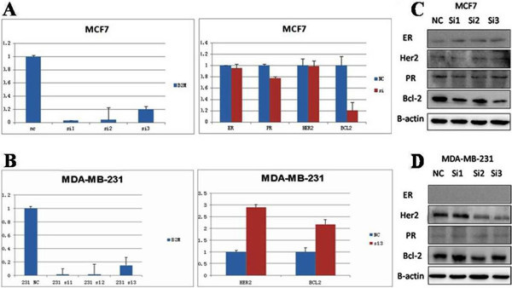 Silencing of theβ2-Mgene by siRNAs in breast cancer cells. A) β2-M siRNAs significantly inhibited the Bcl-2 mRNA expression, but did not inhibit the ER, PR, and HER-2 mRNA expression in MCF-7 cells (ER+, PR+ and HER-2−); B) β2-M siRNAs significantly up-regulated the Bcl-2 and HER-2 mRNA expression in MDA-MB-231 cells (ER−, PR− and HER-2−); C) ER, HER-2, PR and Bcl-2 protein levels in MCF-7 cells, with or without β2-M siRNAs; D) ER, HER-2, PR and Bcl-2 protein levels in MDA-MB-231 cells, with or without β2-M siRNAs.