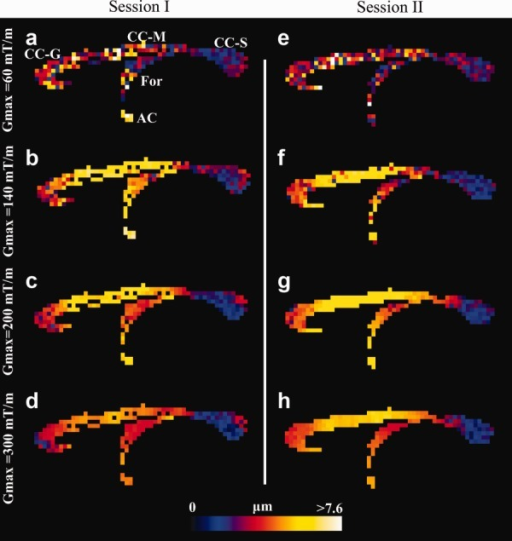 Voxel-wise estimation of axon diameter index in the CC of the fixed monkey brain. Axon diameter index obtained from sessions I (a–d) and II (e–h), shown in a midsagittal slice for Gmax = 60, 140, 200, and 300 mT/m. The range of diameters is shown by the color bar. High agreement between the two sessions is observed. Higher Gmax improves spatial coherence and more anatomical details appear. Abbreviations: Genu (CC-G), midbody (CC-M), and splenium (CC-S) regions of CC, fornix (For), and anterior commissure (AC).