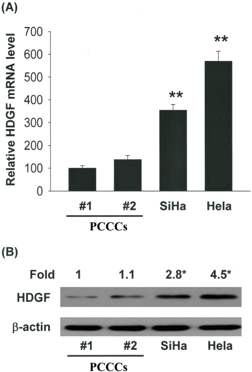 HDGF mediated the survival of cervical cancer cells, thereby increasing proliferation/growth. Correlation of HDGF expression with the tumorigenic behaviors of cervical cancer cells. (A) qRT-PCR and (B) immunoblot analysis of HDGF protein level in human cervical cell lines. All data are reported as the mean (±SEM) of at least three separate experiments. Statistical analysis was performed using a t-test, with significant differences determined at the level of *p < 0.05 and **p < 0.01 versus the control group (HDGF 0 nM group).