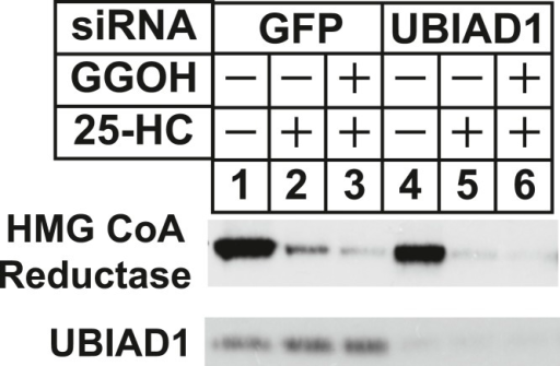 RNA interference-mediated knockdown of UBAD1 alleviates requirement for geranylgeraniol in sterol-accelerated reductase degradation.SV-589 cells were set up for experiments on day 0, transfected with the indicated siRNA duplexes on day 3, and depleted of sterols as described in the legend to Figure 3. Notably, the siRNA duplex targeting UBIAD1 (5′-UCUUGGAGCCGCAGGAUGUUU-3′, Dharmacon/ThermoScientfic) was distinct from that used in Figures 3, 6. The sterol-depleted cells were then treated with medium A containing 10% NC-LPPS, 10 µM compactin, and 50 µM mevalonate in the absence or presence of 1 µg/ml 25-HC and 20 µM geranylgeraniol (GGOH). Following incubation for 4 hr at 37°C, cells were harvested for subcellular fractionation. Aliquots of resulting membrane fractions (20 µg protein/lane) were subjected to SDS-PAGE and immunoblot analysis was carried out with IgG-A9 (against reductase) and IgG-H8 (against UBIAD1).DOI:http://dx.doi.org/10.7554/eLife.05560.013