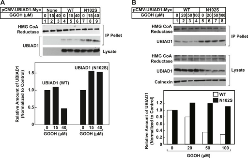 SCD-associated UBIAD1 (N102S) resists geranylgeraniol-mediated displacement from HMG CoA reductase in two independent experiments (A and B).UBIAD1−/pCDNA3.1, UBIAD1−/pMyc-UBIAD1 (WT), and UBIAD1−/pMyc-UBIAD1 (N102S) cells were set up for experiments on day 0 at a density of 4 × 105 cells per 60-mm dish in medium A containing 10% FCS. On day 3, cells were depleted of sterols as described in the legend to Figure 4. After 16 hr at 37°C, cells received the identical medium containing 1 µg/ml 25-HC in the absence or presence of the indicated concentration of geranylgeraniol. After 45 min at 37°C, cells were harvested, lysed, and immunoprecipitated with polyclonal anti-reductase antibodies. Aliquots of the precipitated material and the lysates were subjected to SDS-PAGE and immunoblot analysis was carried out with IgG-A9 (against reductase), IgG-H8 (against UBIAD1), and anti-calnexin IgG. Proteins corresponding to immunoprecipitated UBIAD1 were quantified using ImageJ software. The intensities of these signals in the absence of geranylgeraniol were arbitrarily set as 1.DOI:http://dx.doi.org/10.7554/eLife.05560.017
