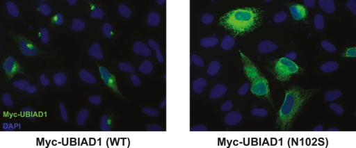 Subcellular localization of wild type and SCD-associated N102S UBIAD1 in transfected SV-589 cells.SV-589 cells were set up for experiments on day 0, transfected on day 1 with pCMV-Myc-UBIAD1 (WT) or (N102S) in medium A containing 10% FCS, and subjected to immunostaining, followed by imaging as described in the legend to Figure 5—figure supplement 1.DOI:http://dx.doi.org/10.7554/eLife.05560.018
