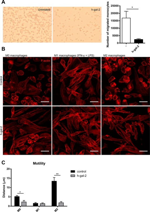 Human galectin-2 affects migration of monocytes and drives M1-type polarization of macrophages.(A) Spontaneous migration of human monocytes across fibronectin-coated Transwell inserts was assessed in the absence or presence of rh-gal-2. Representative pictures are shown of migrated cells after 24h. Quantified migrated cell counts represent the mean ± SEM from at least 3 independent experiments. *P < 0.05. (B) Human monocyte-derived differentiated macrophage subtypes (M0, M1 and M2) were stimulated at day 7 with either vehicle (control) or rh-gal-2 for 24 hours followed by actin staining (TRITC-labeled phalloidin). Representative images from three independent experiments are shown. A scale bar (25um) indicates the size of the cells, which become elongated (M1-like) in the presence of rh-gal-2. (C) Human monocyte-derived macrophage subtypes were stimulated at day 7 with either vehicle (control) or rh-gal-2. Motility is presented as mean traveled distance ± SEM, from at least 3 independent experiments. *P < 0.05, **P < 0.01.