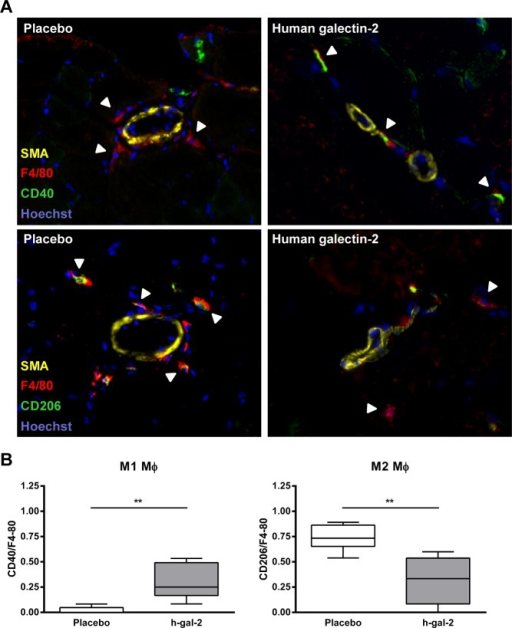 Human galectin-2 treatment induces M1 polarization of macrophages in vivo.(A) Representative immunofluorescence staining of CD40/F4-80 (M1) and CD206/F4-80 (M2) macrophages on muscle sections of the left adductor of the ligated hind limb obtained from placebo and human galectin-2 treated mice at 7 days after occlusion of the femoral artery is shown.Photomicrographs show arteries identified by SMA (yellow; Alexa fluor 488), cell nucleus by Hoechst (blue), macrophages by F4/80 (red; Alexa fluor 647) and macrophage subtypes by CD40 (green; streptavidin Alexa fluor 555) or CD206 (green; streptavidin Alexa fluor 555) staining as described in methods. Arrowheads indicate the macrophage subtypes. (B) Boxplot showing the counts of M1 and M2 macrophages in placebo vs. human galectin-2 treated mice. Data are presented as median and range. Boxes represent the first and third quartiles, the line within the box represents the median, and the lines outside the box represent the spread of the values. N = 7 for placebo, N = 5 for human galectin-2 treated group. (**P < 0.01, Mann-Whitney U test).