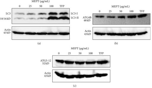 The expression of LC3 and Atg proteins in MEPT-treated HSC-4 cells. Western blotting was performed for LC3-I and LC3-II, Atg4B, and Atg5-12 conjugate protein after administering MEPT at 0, 25, 50, or 100 μg/mL for 24 h or 10 μM TFP (positive control for autophagy) for 24 h.