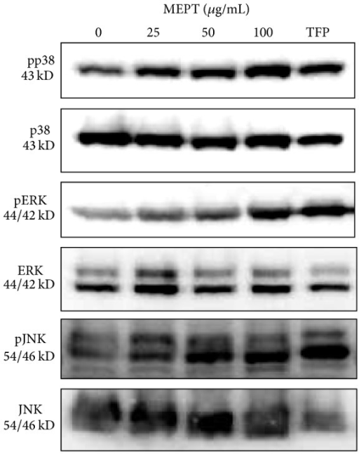 Expression and activation of MAPK proteins in MEPT-treated HSC-4 cells. Western blot analysis was conducted to measure the total and phosphorylated forms of p38, ERK, and JNK in HSC-4 cells treated with 0, 25, 50, or 100 μg/mL of MEPT for 24 h or 10 μM TFP for 24 h. The expression levels of phospho-p38, phospho-ERK, and phospho-JNK were normalized using a loading control.