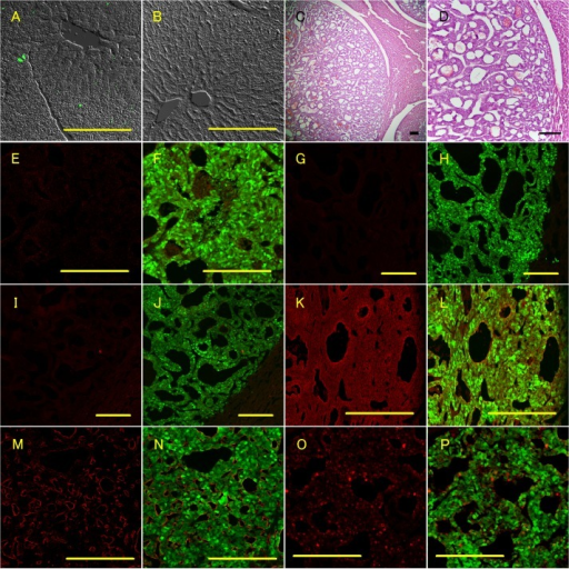 Dissemination of GFP-positive cells and metastatic neuroendocrine tumors in the liver of GCGKO mice.A and B: Fluorescence with phase contrast imaging of the liver section. Livers from a 12-month-old GCGKO mouse (A) and an 18-month-old Gcggfp/+ mouse (B) are shown. C and D: H&E-staining of the metastatic neuroendocrine tumor. E–P: Fluorescent immunohistochemical analyses showing the GFP fluorescent signal (F, H, J, L, N, and P) or not (E, G, I, K, M, and O). Immunoreactivity for insulin (E and F), somatostatin (G and H), pancreatic polypeptide (I and J), chromogranin A (K and L), VEGF (M and N), and Ki-67 (O and P) is shown in red. Scale bars: 200 μm.