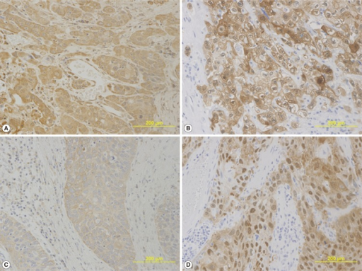 (A, B) A patient whose laryngeal squamous cell carcinoma recurred, with a high angiogenin (ANG) expression (A), and a cytoplasmic pattern of Maspin expression (B), in carcinoma cells; (C, D) a patient who had no evidence of disease during the follow-up, with a low ANG expression (C), and a nuclear pattern of Maspin expression (D). (A-D) Immunohistochemical staining.