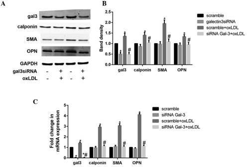 Silencing of galectin-3 (gal-3) reversed the oxidized low-density lipoprotein (oxLDL)-induced phenotypic transformation of human umbilical smooth muscle cells (HUSMCs). HUSMCs were transfected with gal-3-specific small interfering (si)RNA for 24 h, and then cultured with 50 μg/ml oxLDL for 48 h. The mRNA and protein expression levels of gal-3, smooth muscle α-actin (SMA), calponin, and osteopontin (OPN) were measured by reverse transcription-quantitative polymerase chain reaction (RT-qPCR) and western blotting. (A and B) Western blotting and (C) RT-qPCR results of gal-3, calponin, OPN and SMA are shown. (B) The respective densitometric measurement results are given. The protein expression levels of gal-3, calponin, OPN and SMA were normalized to those of GAPDH. Band density of HUSMCs transfected with scramble siRNA was defined as control and set to 1. Data are presented as the mean ± standard deviation. *P<0.05, vs. the control. #P<0.05, vs. oxLDL.