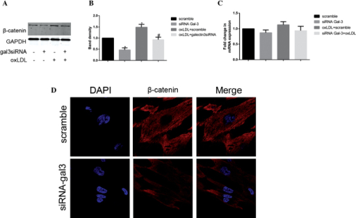 Galectin-3 (gal-3) silencing inhibits the expression of β-catenin. Following transfection with either control or gal-3-specific small interfering (si)RNA for 24 h, human umbilical smooth muscle cells (HUSMCs) were incubated for 48 h in the presence or absence of 50 μg/ml oxidized low-density lipoprotein (oxLDL). β-catenin expression was measured by reverse transcription-quantitative polymerase chain reaction (RT-qPCR) and western blotting. β-catenin representative (A and B) western blotting and (C) RT-qPCR results are shown. GAPDH expression was used to normalize protein expression levels. (B) The respective densitometric measurement results are given. The band density of HUSMCs transfected with either scramble siRNA was defined as the control and set to 1. The data are presented as the mean ± standard deviation from three independent experiments. *P<0.05, vs. the control. #P<0.05, vs. oxLDL. (D) The confocal images of HUSMC transfected with either control or gal-3-specific siRNA using anti-β-catenin (red) antibodies, followed by DAPI nuclear counter staining (blue) are shown. The merged images containing all markers are also shown (magnification, ×630).