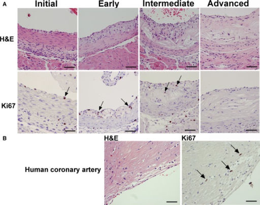 Detection of proliferating cells during murine and human atherosclerotic lesion growth. Ki67 immunohistochemistry and H&E staining in Apoe−/− mice on chow diet identified proliferating cells during various stages of lesion progression, ranging from initial macrophage infiltration to advanced lesions (A). In the initial and early stage, macrophages below the endothelium, as well as foam cells in fatty streaks, were Ki67 positive (Initial and Early, arrows). At 24 weeks of age, in lesions of the intermediate type with large necrotic cores, few Ki67‐positive cells were observed (Intermediate, arrows). At 55 weeks of age, lesions were mostly necrotic with very few Ki67‐positive cells (Advanced). Human lesions from coronary arteries stained with Ki67 contained some Ki67‐positive cells in areas rich in macrophages (B, arrows). Bar=50 μm. H&E indicates hematoxylin and eosin.