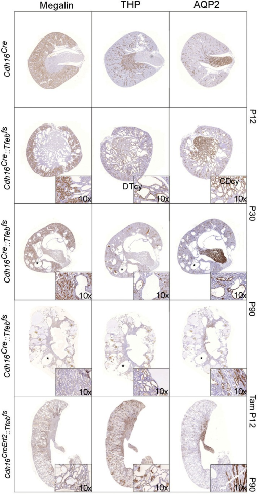 Characterization of cyst origin in Cdh16Cre::Tfebfs and Cdh16CreErt2::Tfebfs mice.IHC staining of megalin, THP and AQP2 at different time points. Insets are enlargements of representative areas of interest. Larger cysts (denoted by an asterisk) are negative for all the markers tested. DTcy = Distal Tubules cysts; CDcy = Collecting Ducts cysts.DOI:http://dx.doi.org/10.7554/eLife.17047.005