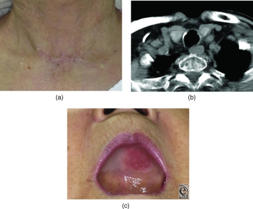 Findings 1 year after surgery. (a) The neck scar is inconspicuous. (b) Computed tomographic scan showing complete closure of the tracheocutaneous fistula without stenosis. (c) Skin graft on the palate is durable, and a full denture could be worn as before.