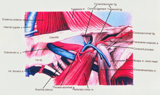 coracoclavicular ligament; trapezius muscle; conoid ligament; trapezoid ligament; coracoacromial ligament; transverse scapular artery; coracoid process; biceps brachii muscle; coracobrachialis muscle; scalenus anterior muscle; internal jugular vein; clavicle; subclavian artery; subclavian vein; first rib; internal thoracic artery; brachial plexus; thoracoacromial artery; pectoralis minor muscle