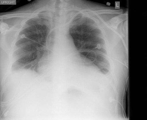 Chest radiograph, frontal and lateral views