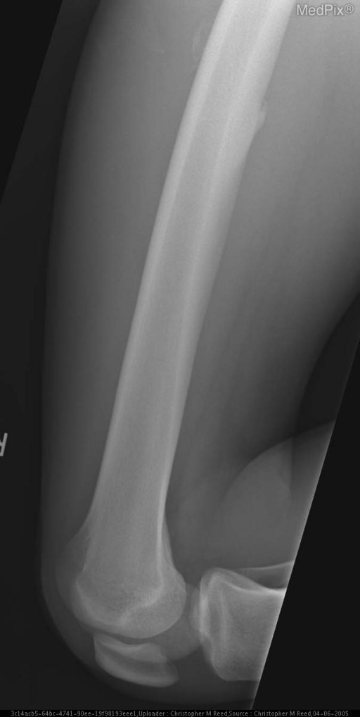 Irregular soft tissue calcification is seen adjacent to the lateral aspect of the mid right femur, underlying site of known prior trauma and now-palpable soft tissue mass. Cortical contiguity is uncertain. Additionally, there is curvilinear extension of the posteromedial mid right femoral cortex consistent with a chronic tug lesion of the thigh adductors.
