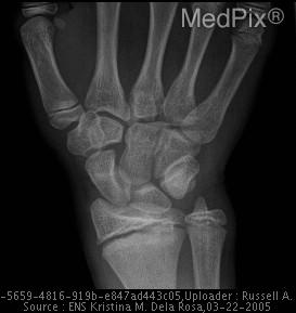A-P radiograph of the left wrist shows widening of physis with extension into metaphysis bilaterally, right > left consistent with Salter Harris Fracture Type 2A. Sclerosis of metaphyseal edges bilaterally.  No displacement.