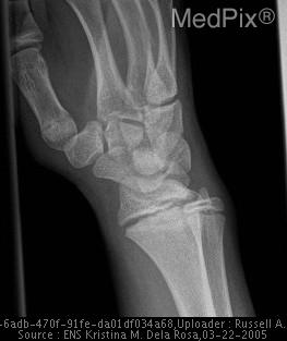 Oblique radiograph of the left wrist shows widening of physis with extension into metaphysis bilaterally, right > left consistent with Salter Harris Fracture Type 2A. Sclerosis of metaphyseal edges bilaterally.  No displacement.