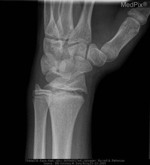 Oblique radiograph of the right wrist shows widening of physis with extension into metaphysis bilaterally, right > left consistent with Salter Harris Fracture Type 2A. Sclerosis of metaphyseal edges bilaterally.  No displacement.