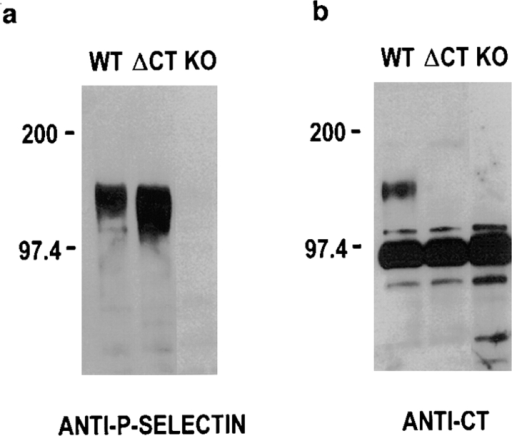 Western blot analysis of P-selectin expressed in platelets. Platelets from wild-type (WT), ΔCT, and P-selectin–knockout (KO) mice were lysed in SDS lysis buffer at 5 × 109/ml. 10 μl  of lysates were loaded in each lane of 7.5% SDS polyacrylamide  gels. (a) The blot was probed with polyclonal antibodies against  P-selectin. (b) A polyclonal antibody against a KLH-coupled  P-selectin cytoplasmic domain peptide sequence was used for  probing.